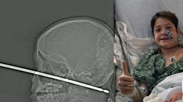 Un niño de 10 años se clava un pincho de cocina en la cara