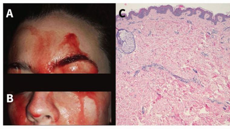 Los médicos estudian el inquietante caso de una joven que suda sangre por las manos y la cara